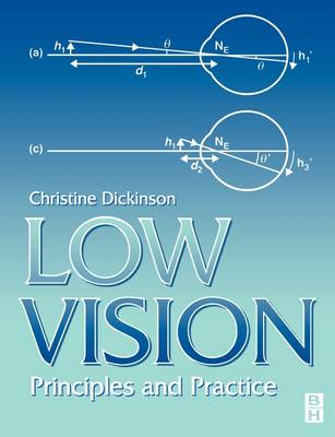 Low Vision: Principles and Practice (Paperback)