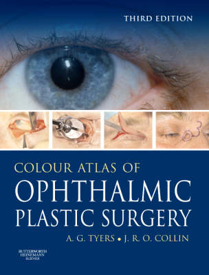 Colour Atlas of Ophthalmic Plastic Surgery with DVD (Hardback)