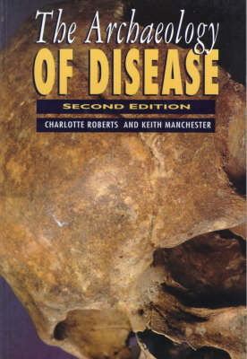 The Archaeology of Disease (Paperback)