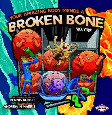 Your Amazing Body Mends a Broken Bone - Your Amazing Body No. 1 (Paperback)