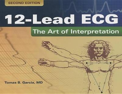 12-Lead ECG: The Art Of Interpretation (Paperback)