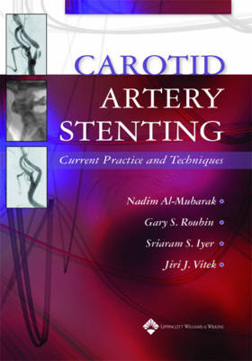 Carotid Artery Stenting: Current Practice and Techniques (Hardback)