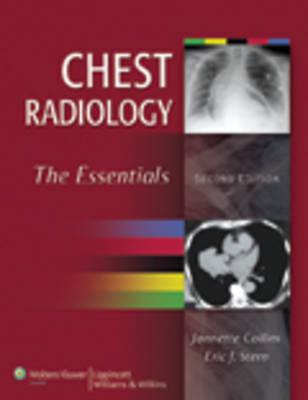 Chest Radiology: The Essentials (Hardback)