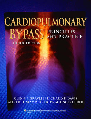 Cardiopulmonary Bypass: Principles and Practice (Hardback)