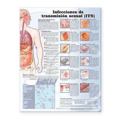 Sexually Transmitted Infections Anatomical Chart in Spanish (Infecciones de transmision sexual) (Wallchart)