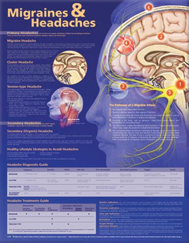 Migraines and Headaches Anatomical Chart (Wallchart)