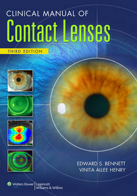 Clinical Manual of Contact Lenses (Paperback)