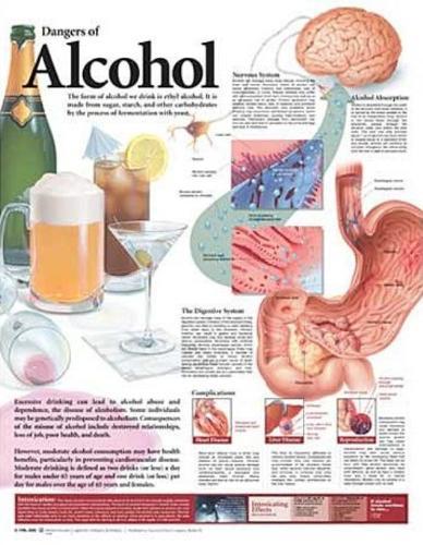 Dangers of Alcohol Anatomical Chart (Wallchart)