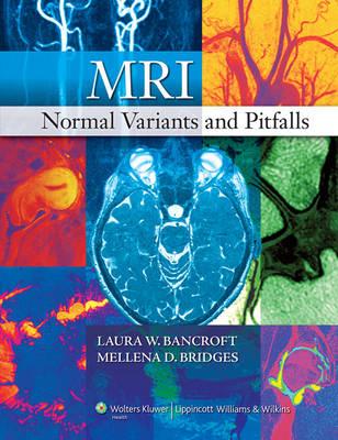 MRI Normal Variants and Pitfalls (Hardback)