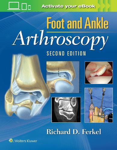 Foot & Ankle Arthroscopy (Hardback)