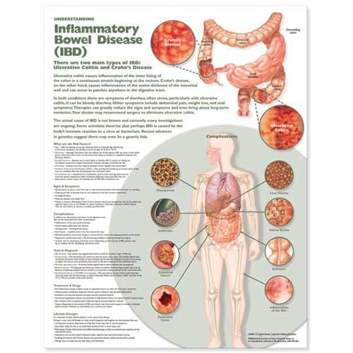 Understanding Inflammatory Bowel Disease (IBD) Anatomical Chart (Wallchart)
