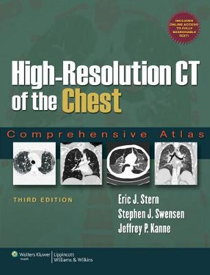 High-Resolution CT of the Chest: Comprehensive Atlas (Hardback)