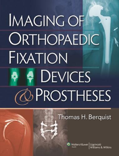 Imaging of Orthopaedic Fixation Devices and Prostheses (Hardback)