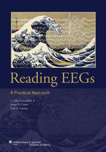 Reading EEGs: A Practical Approach (Paperback)