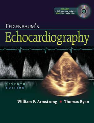 Feigenbaum's Echocardiography (Hardback)