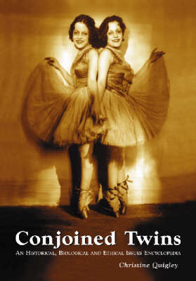 Conjoined Twins: An Historical, Biological and Ethical Issues Encyclopedia (Paperback)