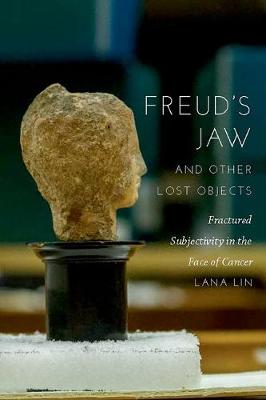 Freud's Jaw and Other Lost Objects: Fractured Subjectivity in the Face of Cancer (Hardback)