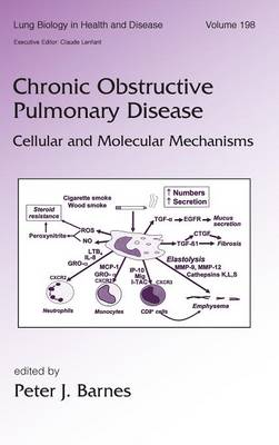 Chronic Obstructive Pulmonary Disease: Cellular and Molecular Mechanisms - Lung Biology in Health and Disease (Hardback)