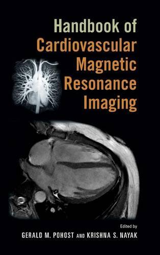 Handbook of Cardiovascular Magnetic Resonance Imaging - Fundamental and Clinical Cardiology (Hardback)