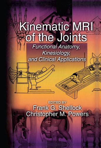 Kinematic MRI of the Joints: Functional Anatomy, Kinesiology, and Clinical Applications (Hardback)