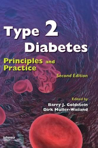 Type 2 Diabetes: Principles and Practice, Second Edition (Hardback)