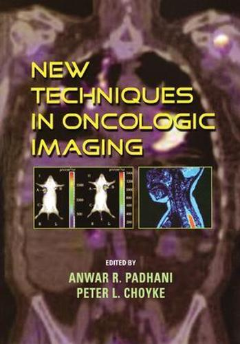 New Techniques in Oncologic Imaging (Hardback)