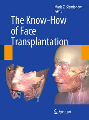 The Know-How of Face Transplantation (Hardback)