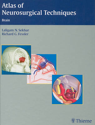 Atlas of Neurosurgical Techniques: Brain (Hardback)