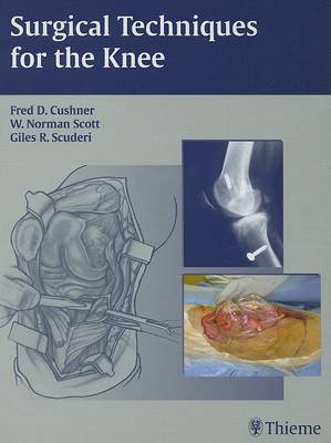 Surgical Techniques for the Knee (Hardback)