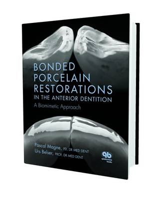 Bonded Porcelain Restorations in the Anterior Dentition: A Biomimetic Approach (Hardback)