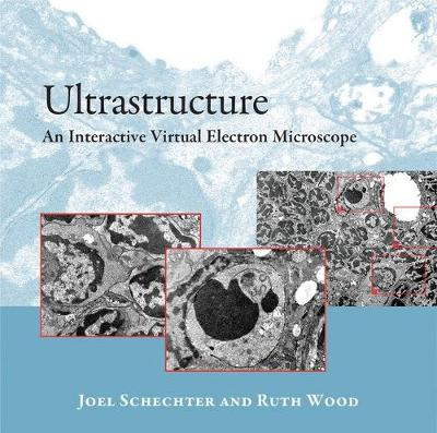 Ultrastructure: An Interactive Virtual Electron Microscope (CD-ROM)