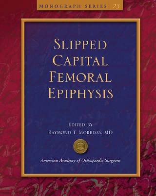 Slipped Capital Femoral Epiphysis - AAOS Monograph Series (Paperback)