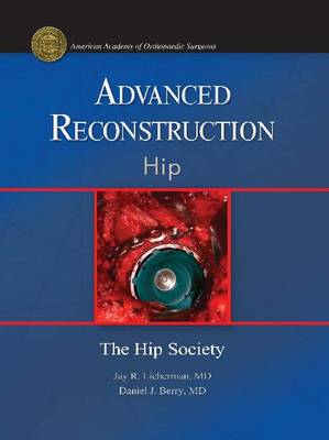 Advanced Reconstruction: Hip - Advanced Reconstruction (Hardback)
