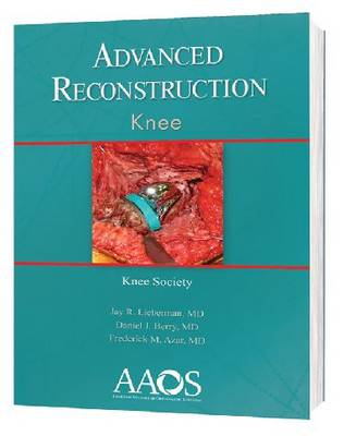 Advanced Reconstruction: Knee - Advanced Reconstruction (Hardback)