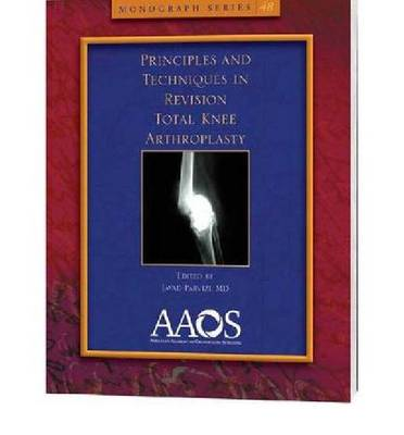 Principles and Techniques in Revision Total Knee Arthroplasty - Monograph Series (Paperback)