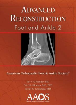 Advanced Reconstruction: Foot and Ankle 2 - Advanced Reconstruction (Hardback)