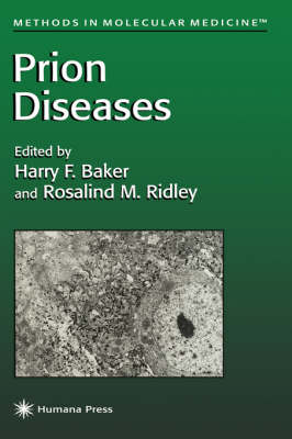 Prion Diseases - Methods in Molecular Medicine 3 (Hardback)