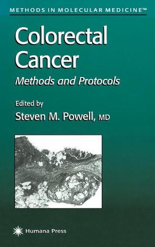 Colorectal Cancer: Methods and Protocols - Methods in Molecular Medicine 50 (Hardback)