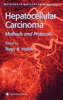 Hepatocellular Carcinoma: Methods and Protocols - Methods in Molecular Medicine 45 (Hardback)