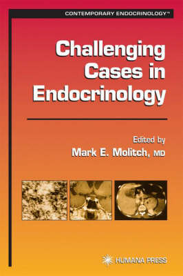 Challenging Cases in Endocrinology - Contemporary Endocrinology (Hardback)