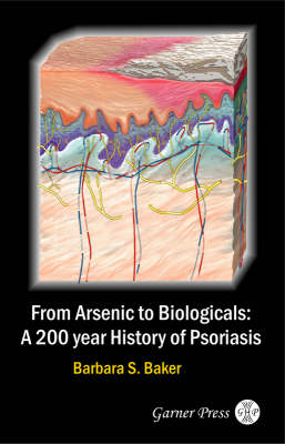 From Arsenic to Biologicals: A 200 Year History of Psoriasis (Paperback)