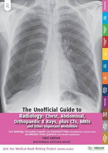 Unofficial Guide to Radiology: Chest, Abdominal and Orthopaedic X Rays, Plus CTs, MRIs and Other Important Modalities: Core Radiology Curriculum - Unoffical Guides (Paperback)