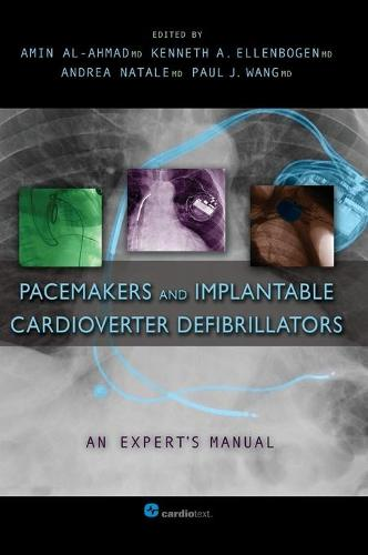 Pacemakers and Implantable Cardioverter Defibrillators: An Expert's Manual (Hardback)