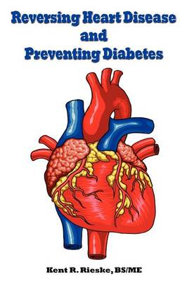 Reversing Heart Disease and Preventing Diabetes: Apply Science to Lower Cholesterol 100 Points; Reduce Arterial Plaque 50% in 25 Months; and Improve Heart Rhythm and Valves (Paperback)