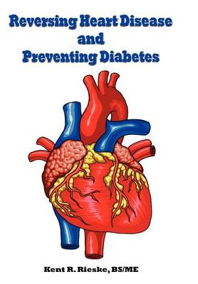 Reversing Heart Disease and Preventing Diabetes: Apply Science to Lower Cholesterol 100 Points; Reduce Arterial Plaque 50% in 25 Months; and Improve Heart Rhythm and Valves (Hardback)