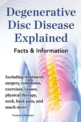 Degenerative Disc Disease Explained. Including treatment, surgery, symptoms, exercises, causes, physical therapy, neck, back, pain, and much more! Facts & Information (Paperback)