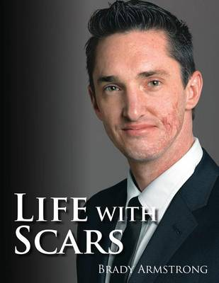 Life with Scars: A Guide to Emotionally Overcoming Physical Trauma (Paperback)