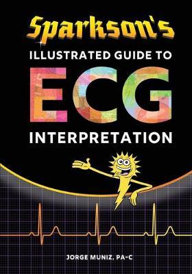 Sparkson's Illustrated Guide to ECG Interpretation (Paperback)