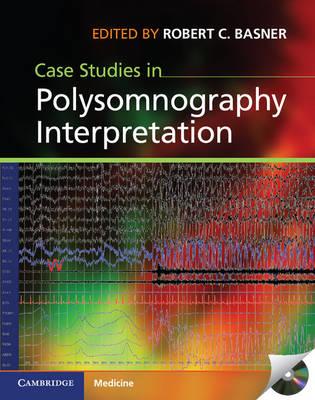 Case Studies in Polysomnography Interpretation (Hardback)