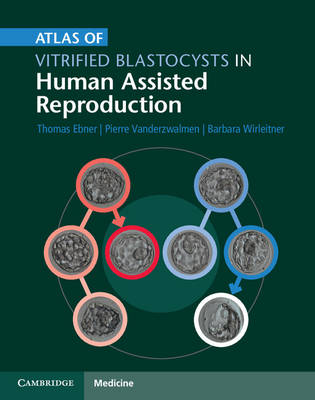 Atlas of Vitrified Blastocysts in Human Assisted Reproduction (Hardback)